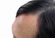 Metody leczenia wypadania włosów
